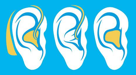 prothèses auditives